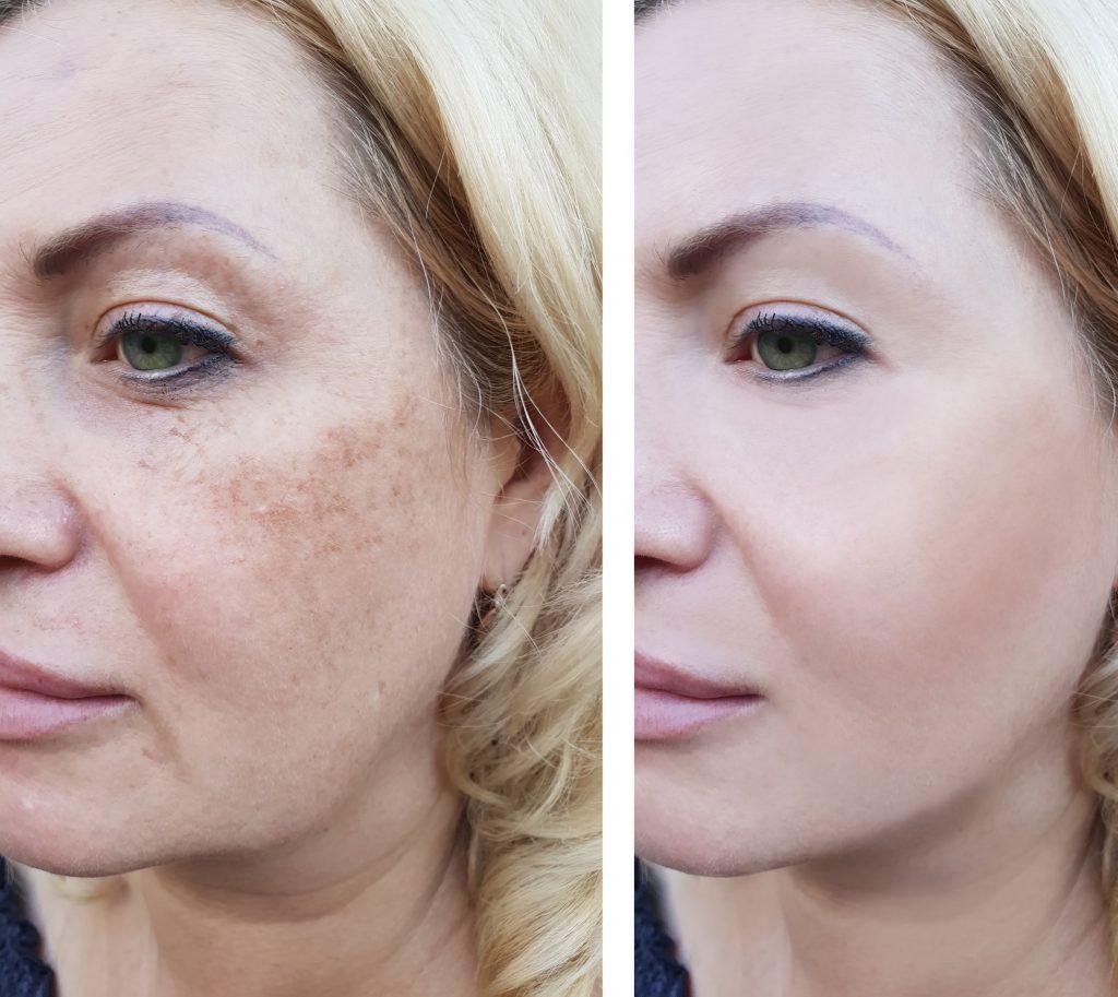 effacer taches brune darkspot avant après freckles laser